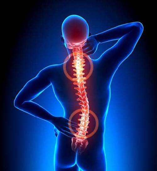 Forebyggelse mod smerter i ryggen fremfor efterbehandling